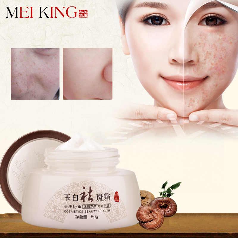 MEIKING crème Anti-taches de rousseur éclaircir blanchiment Anti-âge crème de jour soins de la peau enlever les coups de soleil Pigmentation Chloasma crème 50g