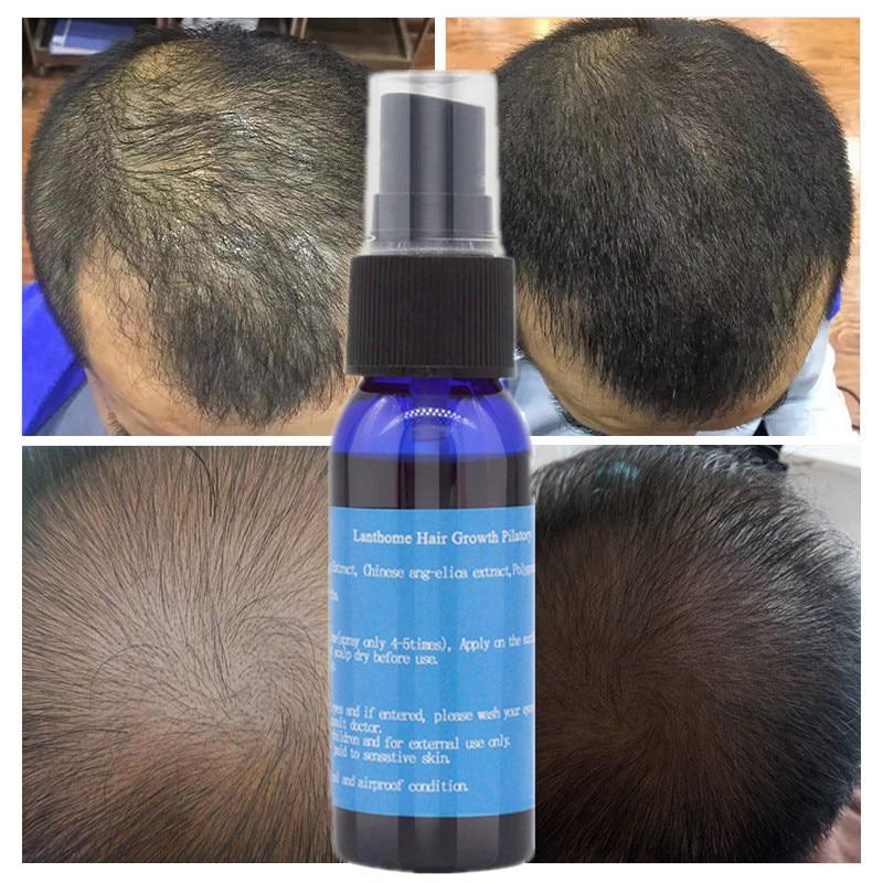 Hair Growth Essential Oils Hair Care Essence Original Authen