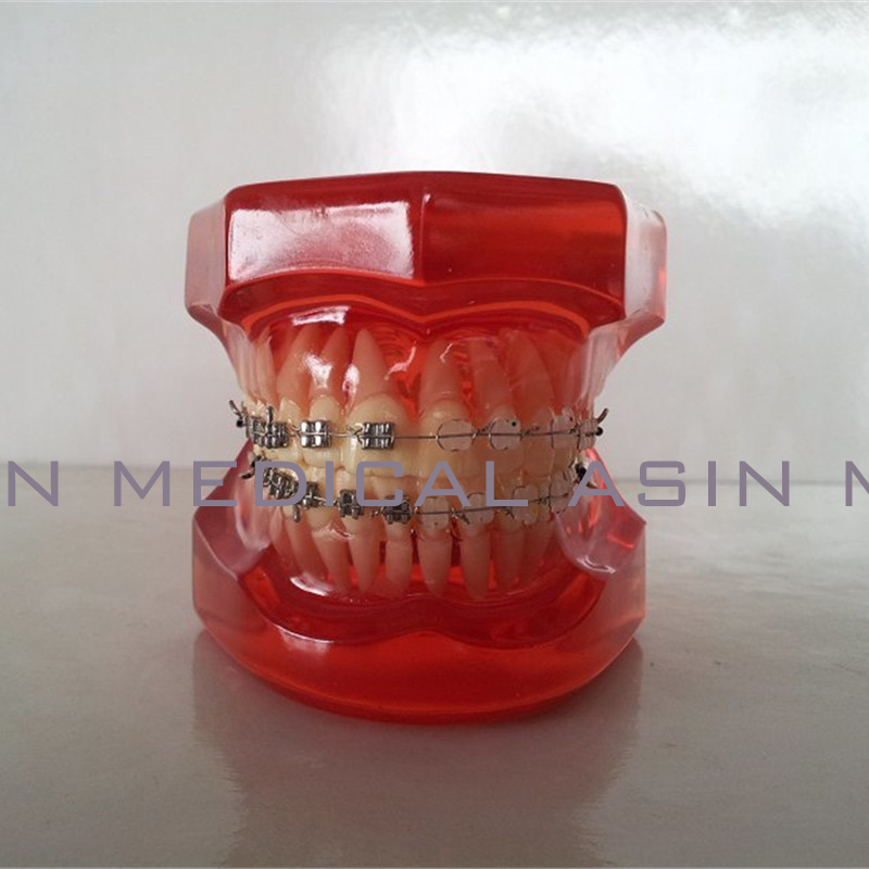 Orthodontists model With metal & ceramic brackets Irregular tooth Ortho Metal dentist patient student learning model orthodontists model with metal