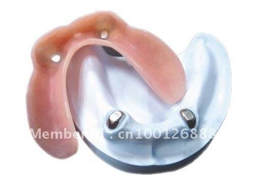 Wholesale dental magnet attachments telescopic crown acrylic denture