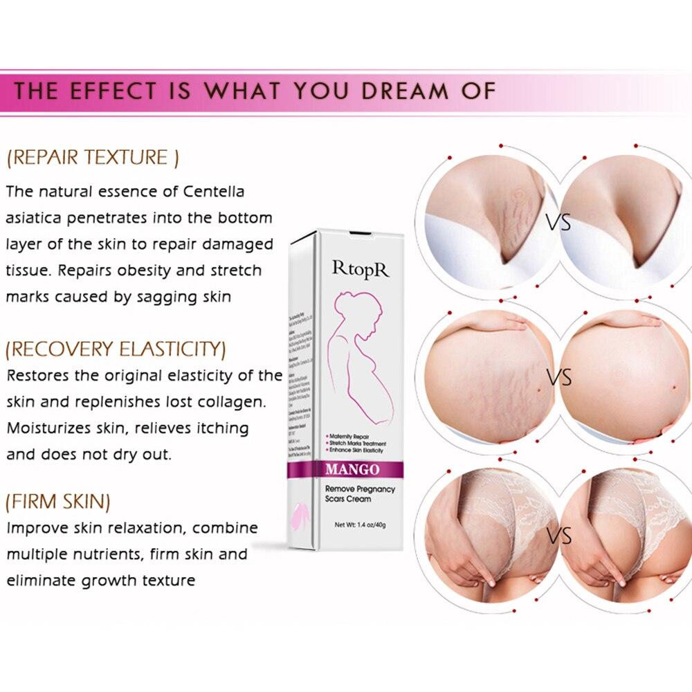 pregnancy stretch marks removal cream