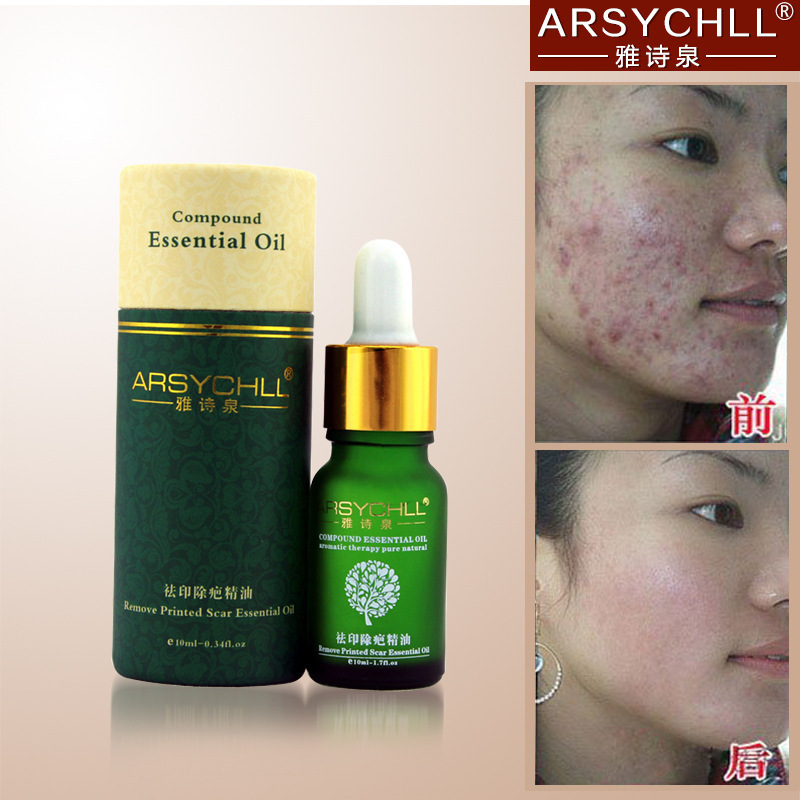 2015 New Arrival Arsychll Potent Compound Essential Oils Remove