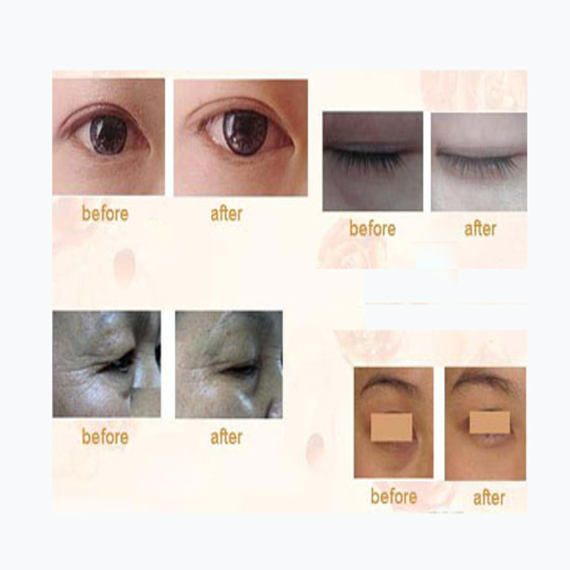 pcs=10pair Deck Out Women Crystal Eyelid Patch Anti-Wrinkle Crystal Collagen Eye Mask Remove Black Eye Beauty Skin Care 10