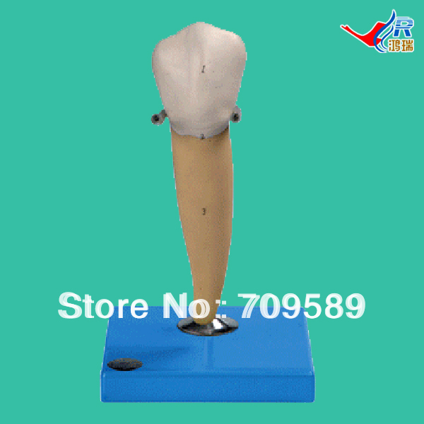 Lower Molar with One Root  Model, Molar Teeth Model the teeth with root canal students to practice root canal preparation and filling actually