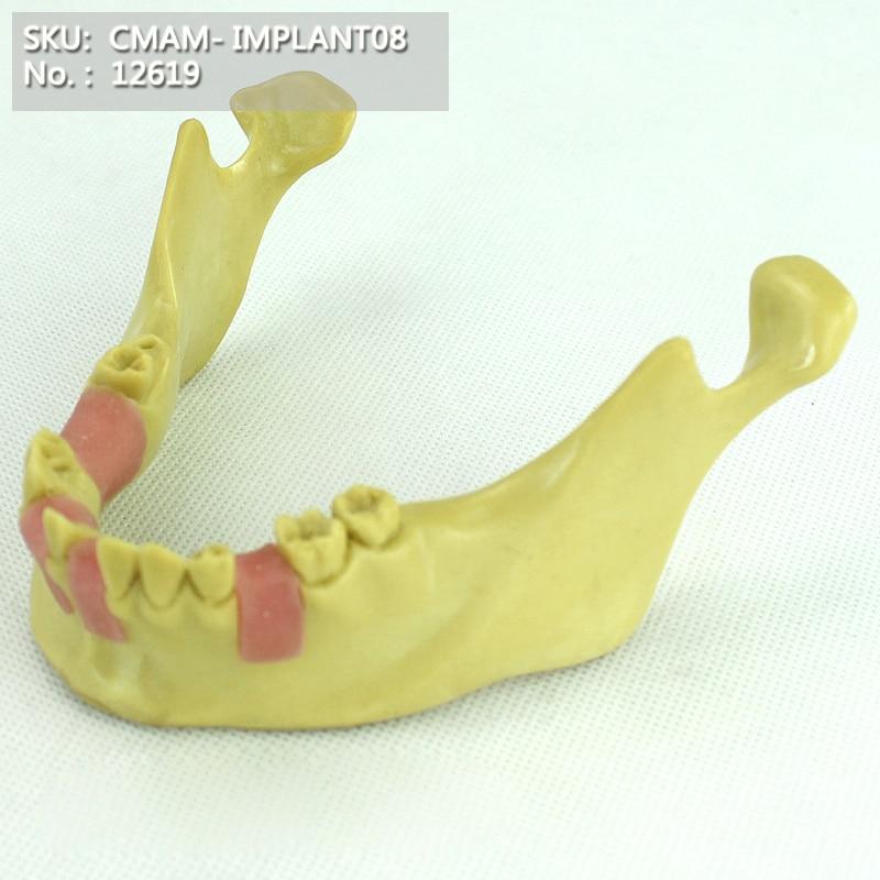 CMAM/12619 стоматологические без зубов челюсти, для тренировки имплантации, стоматологические медицинские анатомические модели обучения