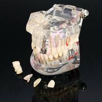 1pcs Dental Implant Disease Teeth Model With Restoration Bridge Tooth Dentist For Medical Science Dental Disease