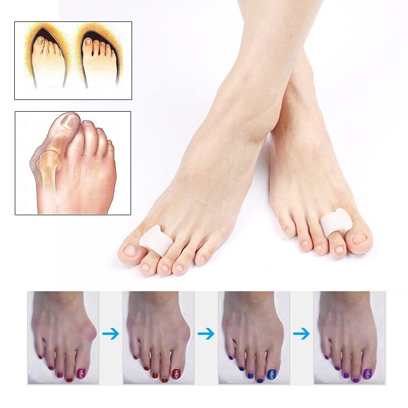 1 Paar Hosenträger Fuß Pflege Kappe Hosenträger Silikon Toe Separator Hallux Valgus Orthopädische Corrector Pediküre Werkzeuge Gesundheit Pflege Produkte
