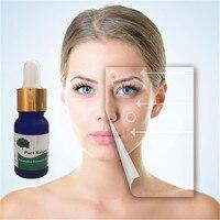 Health Skin Care Genuine eucalyptus Exfoliating Serum Remove Chicken Skin Folliculitis Treatment Shrink Pores Essential Oil 10ml Essential Oil
