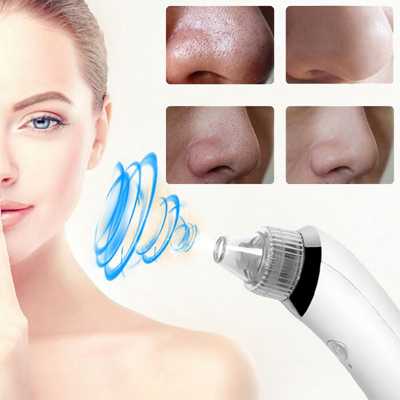 Suck Blackheads Device For Removing Black Dots Acne Blackhead Remover Skin Vacuum Tools To Remove Black Dots Black Heads