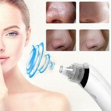 Sugue cravos dispositivo para remover pontos pretos acne removedor de cravo pele ferramentas de vácuo para remover pontos pretos cabeças pretas