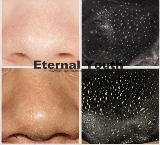 how to close up pores on nose