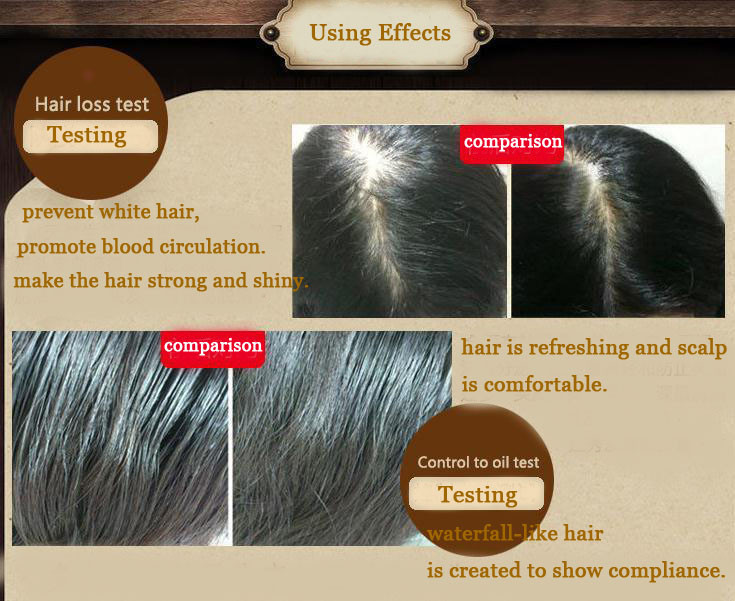 Hair Care Hair Growth Essential Oils Essence Original Authentic 100% Hair Loss Liquid Health Care Beauty Dense Hair Growth Serum 11