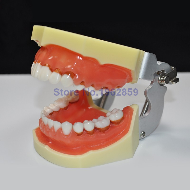 Teeth Model Dental Periodontal Disease Practice Dental Model With Removable Gum Can teeth model blue dental orthodontics communication model with 4 types of brackets