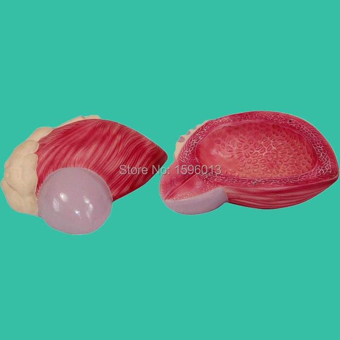 Модель расширения мочевой пузырь, Модель расширения мочевой пузырь