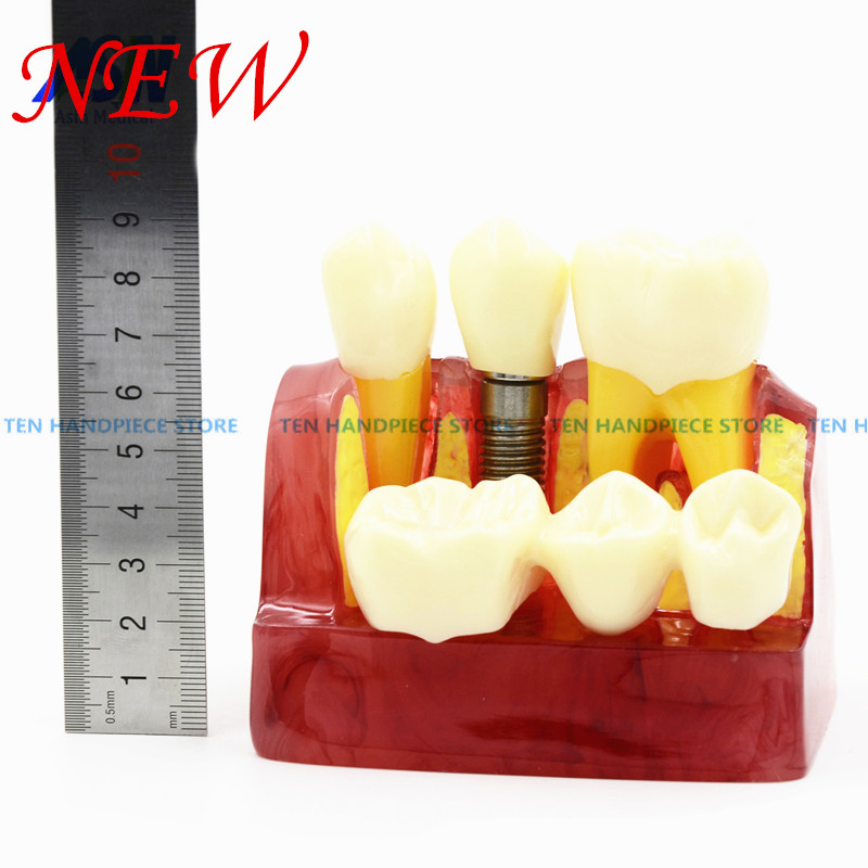2018 good quality MACRO IMPLANT TEETH MODEL CROWN BRIDGE DEMOSTRATATION TEETH TOOH TYPODONT DENTOFORM2018 good quality MACRO IMPLANT TEETH MODEL CROWN BRIDGE DEMOSTRATATION TEETH TOOH TYPODONT DENTOFORM