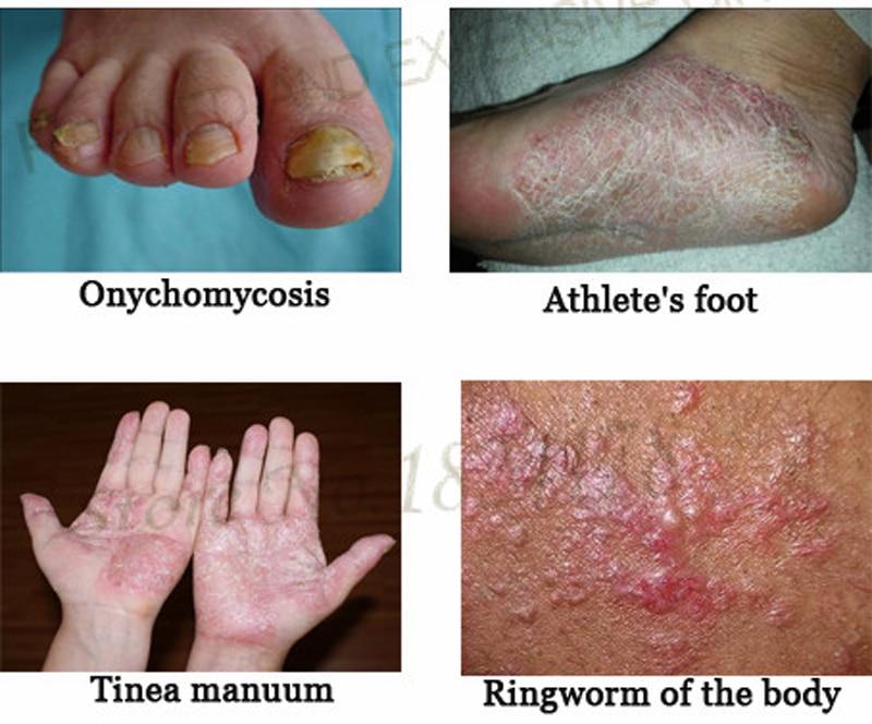 eczema or psoriasis on feet
