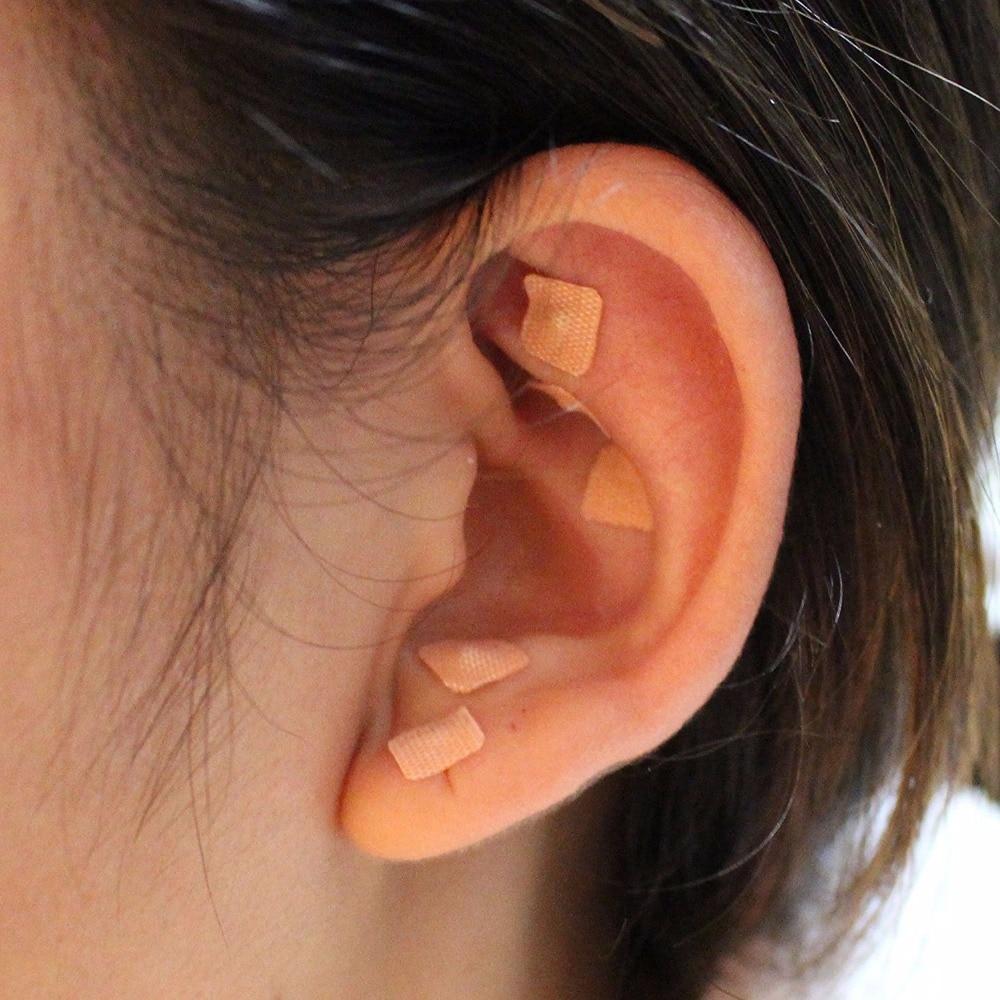 """Résultat de recherche d'images pour """"auriculothérapie magrain"""""""