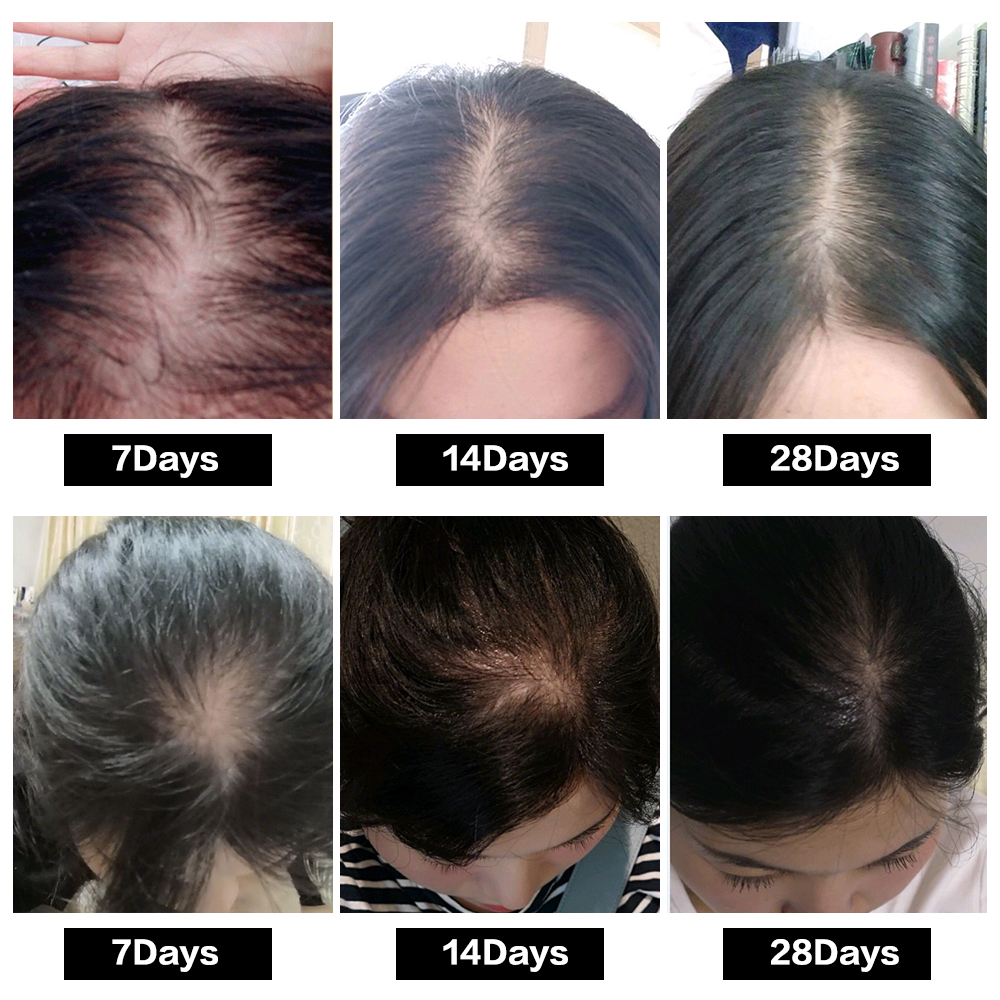 Hair Growth Treatment Oil for Anti Hair Loss Essence Fast Thick Hair Eyebrows Support Natural Healthy Hair Treatment for Women 5