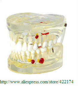 Free Shipping Pathological Model dental tooth teeth anatomical anatomy dentist model odontologia