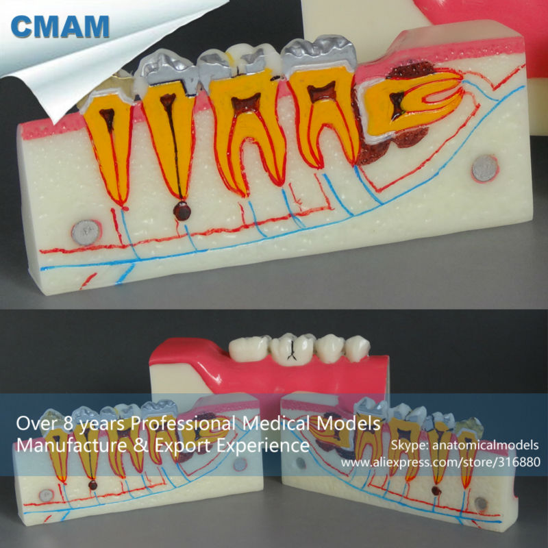 ФОТО CMAM-DT1902 Human Tooth Disease Molar Cross Section Anatomy Study Model