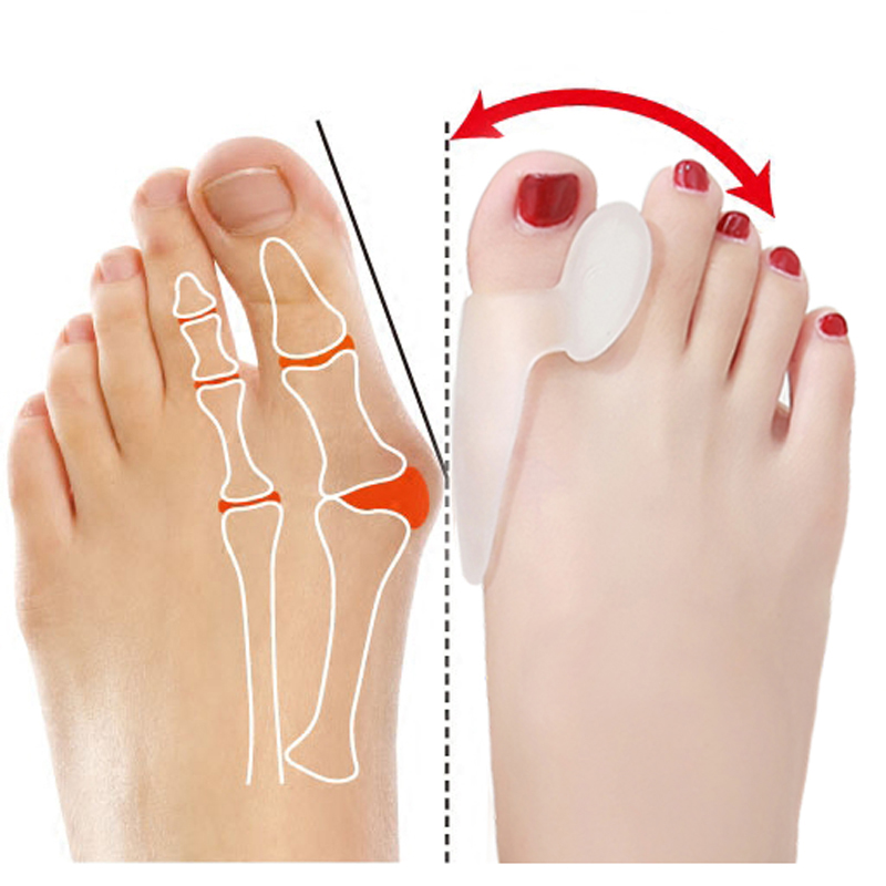 1pair Silicone Foot Massager Toe Separator Fingers Thumb Valgus Protector Bunion Adjuster Hallux Valgus Guard Feet Care Tools