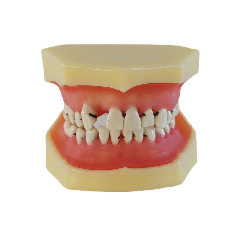 Practical Dental Implant Disease Teeth Model Peridontal Disease Model Medical Science Teaching attachments retaining implant overdentures