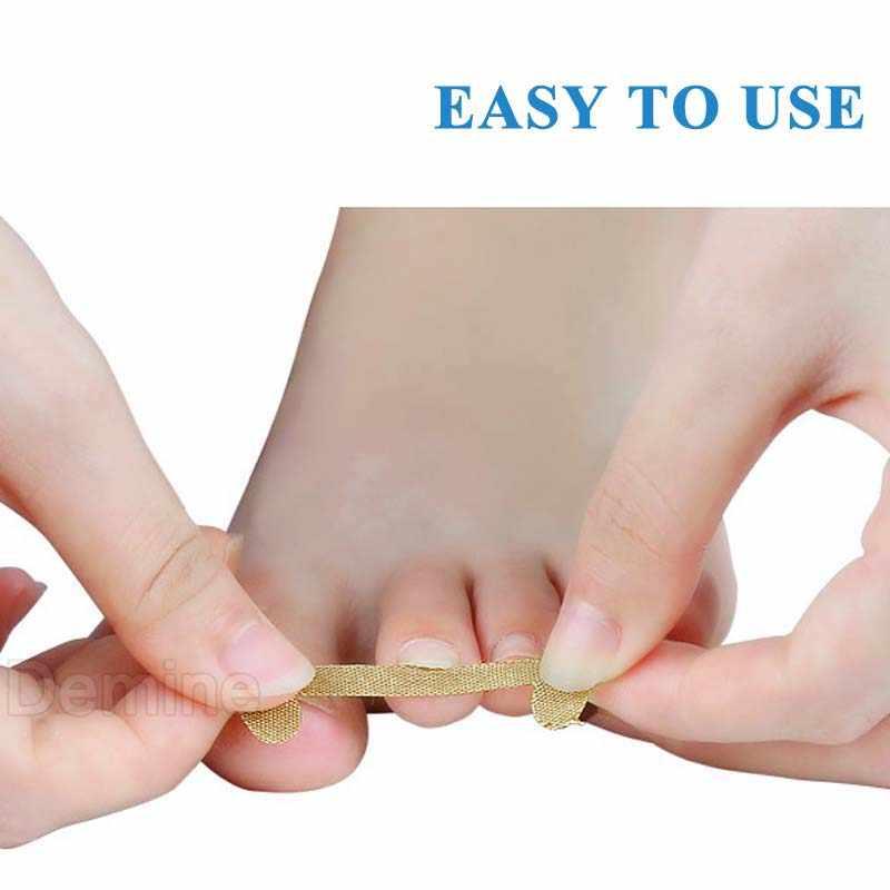 Ingrown Toenail Corrector Stickers Paronychia Treatment Recover Corrector Pedicure Tools Fingernail Toe Nail Care