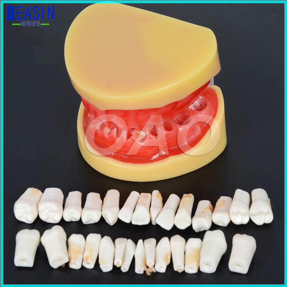 Dental All Teeth Removable Standard Teeth Tooth Model 28 PCS Teeth Student Learning Model 2017 teeth whitening oral irrigator electric teeth cleaning machine irrigador dental water flosser professional teeth care tools