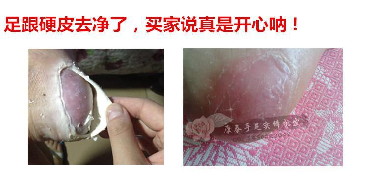 or bump gel removal the warts warts Chinese de pomada finger verruga treatment the foot for plantar or Natural on machine 4