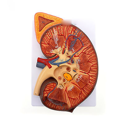 3 Times Enlarged Human Kidney Anatomical Medical Model With Adrenal Glands for Patient Education