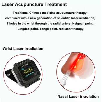 650nm Laser Wrist Watch For Diabetes Hypertension Nose Treatment Rhinitis Sinusitis Cure Physiotherapy Health Care Watch Laser