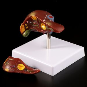 Image 2 - Human Liver Pathological Anatomical Model Anatomy School Teaching Display Tool Lab Equipment L29K