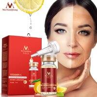 2018 Hautpflege Vitamin C Bleaching Anti Falten Gesichts Serum Anti Aging Moisturzing Serum Gesicht Pflege VC Entfernen Dunkle Flecken serum|Serum|Haar & Kosmetik -