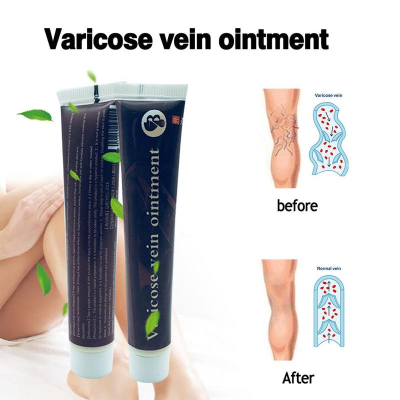 New Varicose Veins Miracle Cream Treatment Effective Cure Vasculitis Phlebitis Spider Veins Pain Varicosity Angiitis Ointment