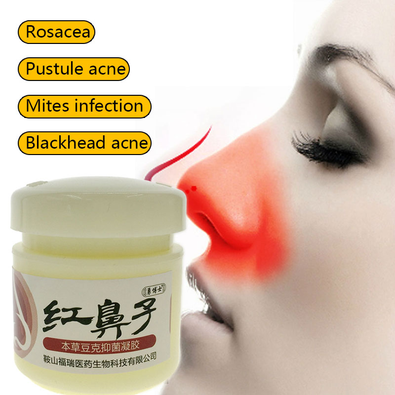 Rosacea Cream Red Nose Ointment Remove Blackhead Acne Cream Skin Care Herbal Anti Acne and Mite Acne Rosacea Treat Shrink Pores precious chinese herbal formula whitening cream facial mask skin care acne scars remove face mask blackhead mite treatment 160g
