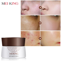 MEIKING Face Cream Acne Treatment Moisturizing Whitening Hydrating Shrink Pores Skin Care Collagen Day Creams Acne Scar Remove