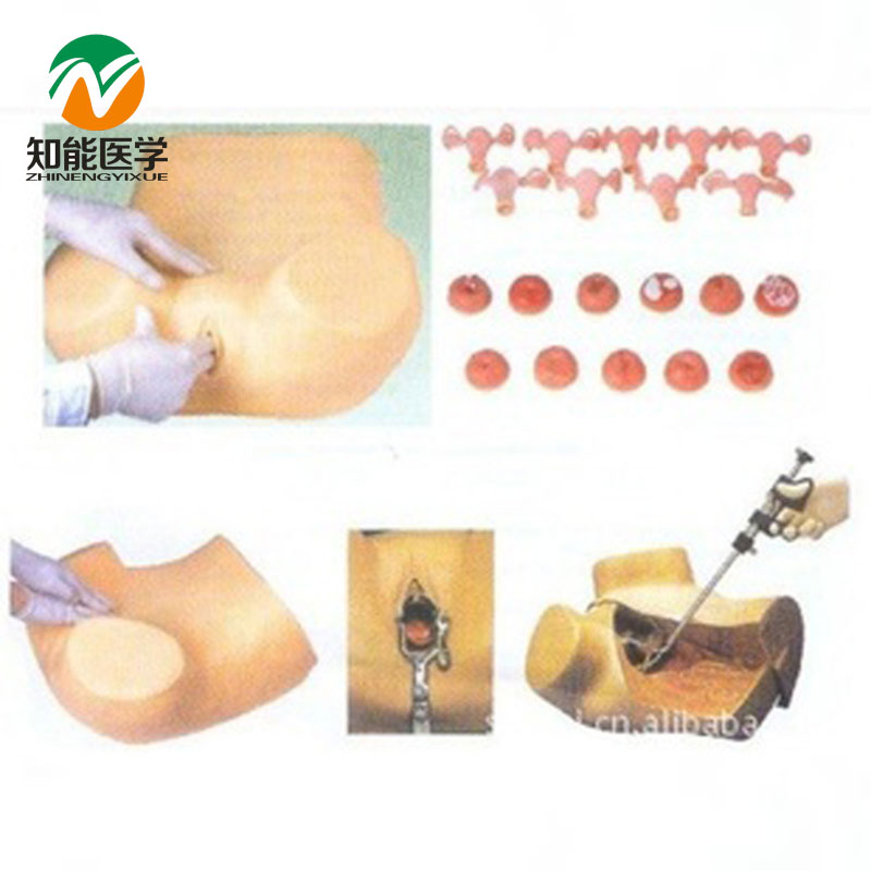 цена BIX-FS Advanced Gynecological Examination Model MQ179