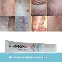 Nuobisong facial scar removal Striae Gravidarum Pigmentation Corrector Anti-Aging cremas face Spots treatment stretch