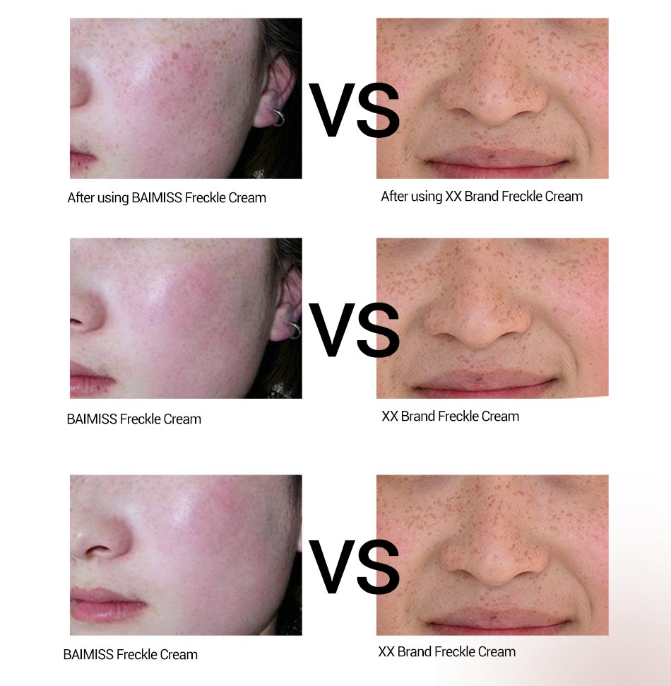 Whitening treatment as is indicated by comparison to the whitening - Aliexpress Com Buy Baimiss Whitening Face Cream White Full Cycle Brightening Treatment Dark Spot Corrector Freckle Speckle Face Care Skin Whitening From