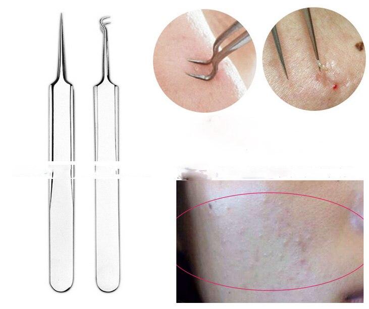 Blackhead Blemish Pimple Extractor removedor Agulhas Ferramenta