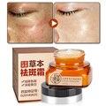 Crema Para la cara Cuidado de La Piel Crema Blanqueadora Facial Melanina Cuidado de la Cara de Eliminación de Manchas Cloasma Peca Crema 30 Días Se Desvanecen Manchas Oscuras