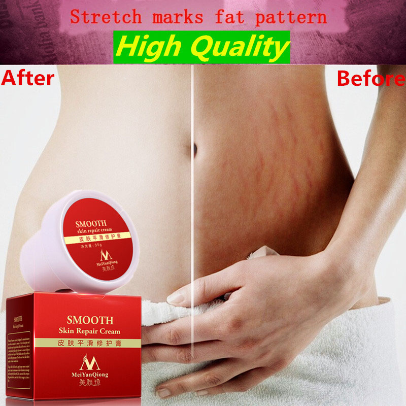 Smooth Repair Cream For Stretch Marks Scar Removal To Maternity Skin Remove Scars Postpartum Body Care 789
