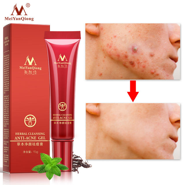 Face Acne Cleaning Cream Skin Care Remove Repair Comedone Pimple Acne Quickly Face Acne Cream Remover Anti Acne Treatment