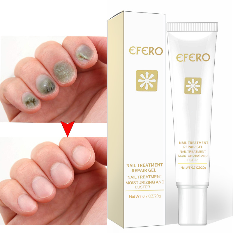Efero 20g Nail Repair Gel Anti Fungal Removal Infection Cuticle Toe Nail Fungus Treatment Solution Foot Protector Cream TSLM2