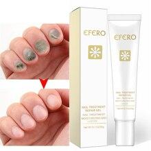 Efero 20 г гель для восстановления ногтей против грибкового удаления инфекции кутикулы пальцев ног Лечение грибка решение Защита ног крем TSLM2