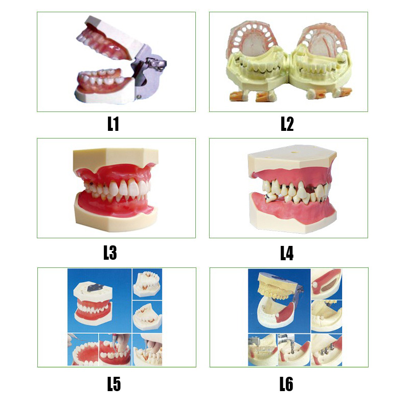 Gingival Diseases teeth Model Peridontal Disease teeth Model Implant Practice Jaw Model senior wax dike orthodontic practice model wax dike teeth orthodontic practice model wax dike wrong jaw correction model