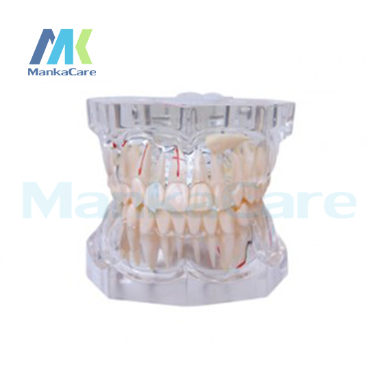 Manka Care - 2.5 Times Pathology Oral Model Teeth Tooth ModelManka Care - 2.5 Times Pathology Oral Model Teeth Tooth Model
