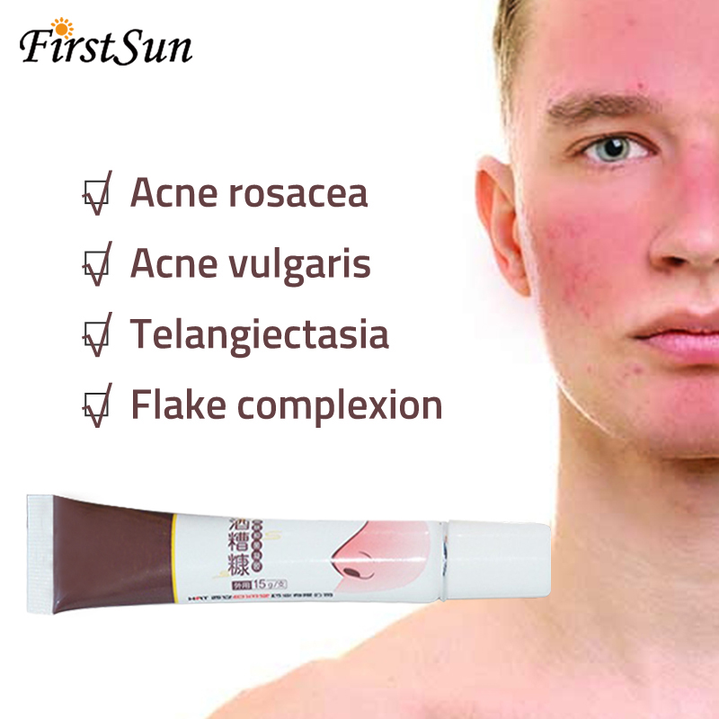 Top 9 Most Popular Rosacea Treatment Ideas And Get Free Shipping