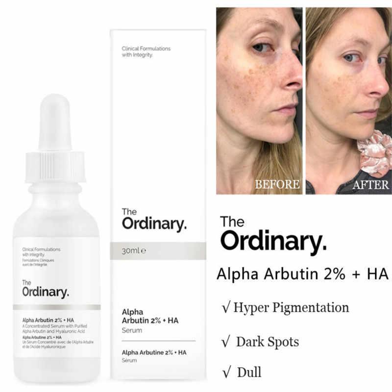 El suero facial blanqueador ordinario elimina las manchas oscuras Alpha ibutina 2% + HA 30ml de hiperpigmentación concentrada de pecas