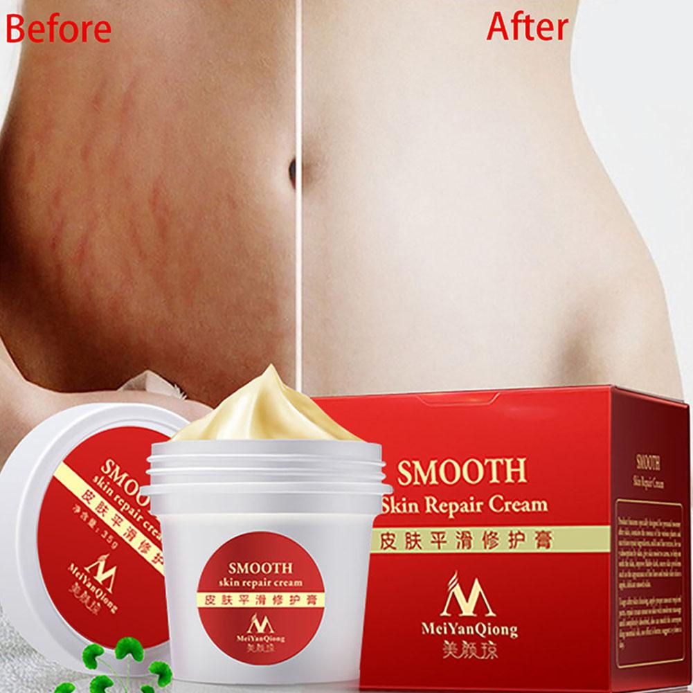 2 Pcs Smooth Skin Repair Cream For Stretch Marks Scar Removal Skin Repair Body Cream